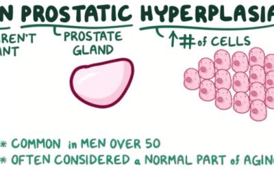 Symptoms & Causes of Benign Prostatic Hyperplasia (BPH)