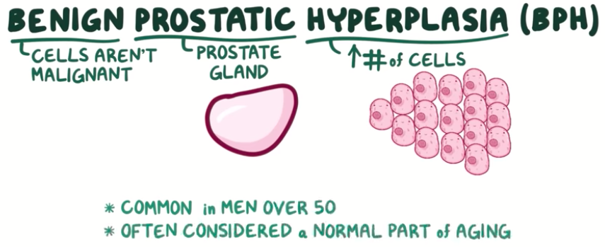 Symptoms & Causes of Benign Prostatic Hyperplasia (BPH)