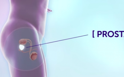 Does Your Prostate Cancer Require Treatment