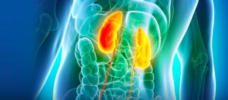 What Exactly Causes Kidney Stones