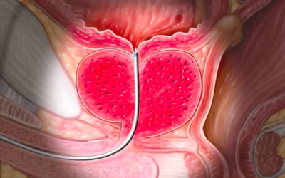 Five Signs When You Pee That Signal Prostate Cancer Symptoms