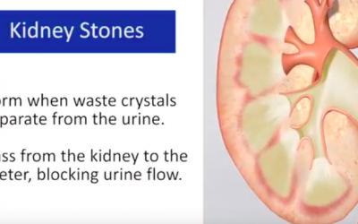 New Treatment Eases the Passage of Kidney Stones