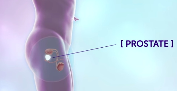 A Simple Home Urine Test Could Revolutionize the Diagnosis of Prostate Cancer