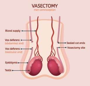 Vasectomy Doctor in Coral Springs, Florida