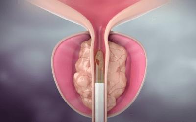 Z Urology Offers Rezum® Therapy to Battle BPH