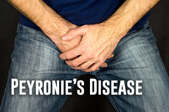 5 Ways Peyronie's Disease Can Affect Your Sex Life