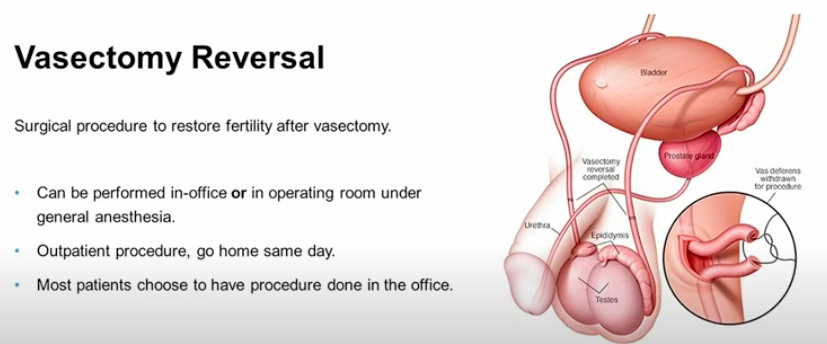 Vasectomy Reversals Just as Successful in Men Over 50